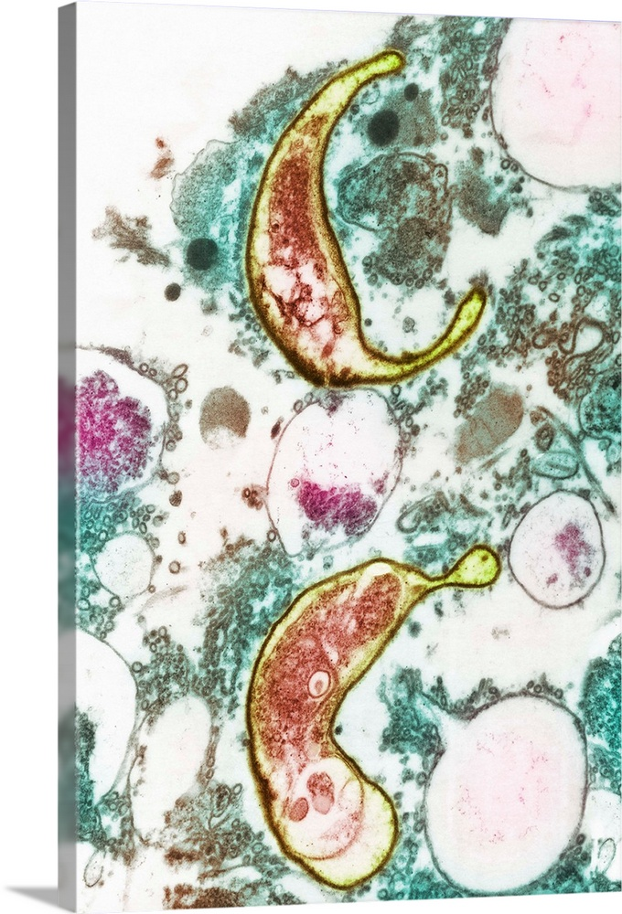 Large Solid-Faced Canvas Print Wall Art Print 20 x 30 entitled AIDS pneumonia infection, TEM Solid-Faced Canvas Print entitled AIDS pneumonia infection, TEM.  AIDS pneumonia infection. Coloured transmission electron micrograph TEM of a section through Pneumocystis carinii protozoa causing pneumonia. The protozoa are crescent-shaped redyellow. They are in lung sputum from a patient suffering from acquired immune deficiency syndrome AIDS. The AIDS virus HIV, human immunodeficiency virus destroys lymphocytes in the immune system that normally defend against opportunistic infections like this. Magnification x6600 at 6x7cm size.  Multiple sizes available.  Primary colors within this image include Brown, Light Yellow, Light Gray, White.  Made in USA.  All products come with a 365 day workmanship guarantee.  Archival-quality UV-resistant inks.  Canvas depth is 1.25 and includes a finished backing with pre-installed hanging hardware.  Canvas is handcrafted and made-to-order in the United States using high quality artist-grade canvas.