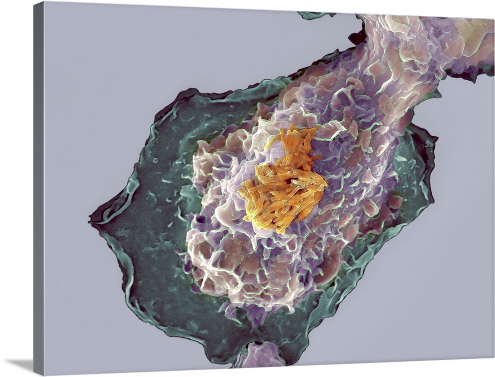 Large Solid-Faced Canvas Print Wall Art Print 40 x 30 entitled Bacteria infecting a macrophage, SEM Solid-Faced Canvas Print entitled Bacteria infecting a macrophage, SEM.  Bacteria infecting a macrophage. Coloured scanning electron micrograph SEM of Mycobacterium tuberculosis bacteria yellow infecting a macrophage white blood cell. The macrophage, when activated, will engulf phagocytose the bacteria and destroy them as part of the bodys immune response. M. tuberculosis causes the disease tuberculosis. It infects the lungs creating primary tubercles, nodular lesions of dead tissue and bacteria. The bacteria may enter the blood or lymph systems and spread to other organs of the body. Tuberculosis is spread by coughs and sneezes. Magnification x1,500 when printed 10 centimetres wide.  Multiple sizes available.  Primary colors within this image include Light Yellow, Black, Silver, Muted Blue.  Made in the USA.  All products come with a 365 day workmanship guarantee.  Archival-quality UV-resistant inks.  Canvas depth is 1.25 and includes a finished backing with pre-installed hanging hardware.  Archival inks prevent fading and preserve as much fine detail as possible with no over-saturation or color shifting.