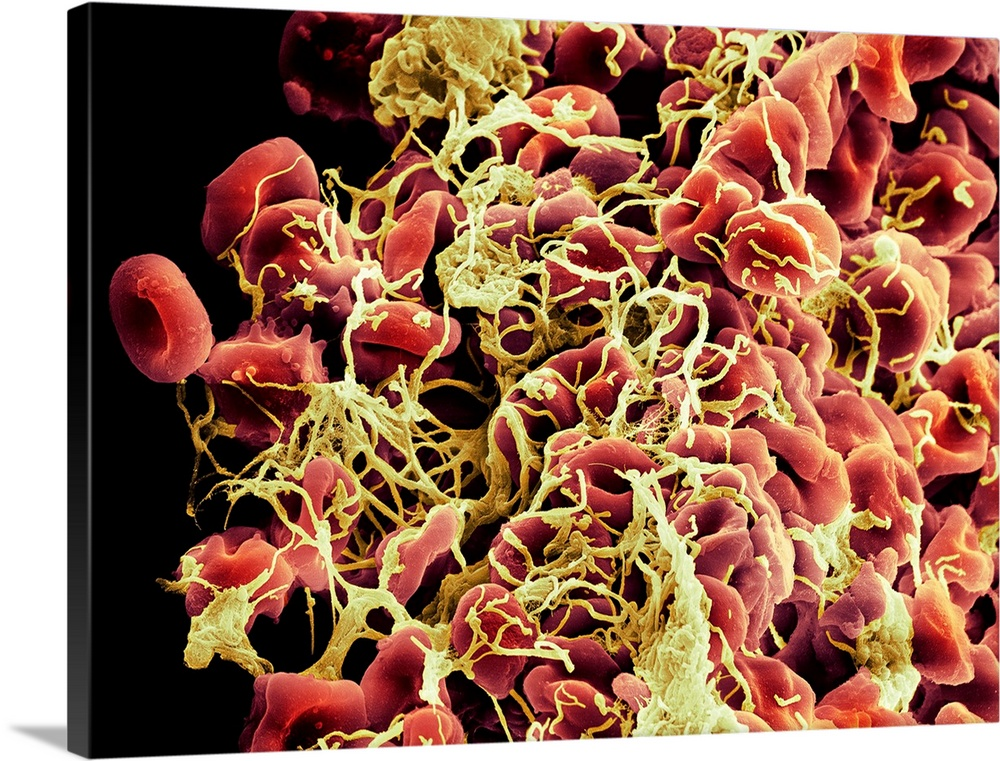Large Solid-Faced Canvas Print Wall Art Print 40 x 30 entitled Blood clot, SEM Solid-Faced Canvas Print entitled Blood clot, SEM.  Blood clot. Coloured scanning electron micrograph SEM of a blood clot beginning to form. Red blood cells erythrocytes, red can be seen trapped within a fibrin mesh thread-like.  Multiple sizes available.  Primary colors within this image include Brown, Light Yellow, Black, White.  Made in the USA.  All products come with a 365 day workmanship guarantee.  Inks used are latex-based and designed to last.  Featuring a proprietary design, our canvases produce the tightest corners without any bubbles, ripples, or bumps and will not warp or sag over time.  Canvas is handcrafted and made-to-order in the United States using high quality artist-grade canvas.