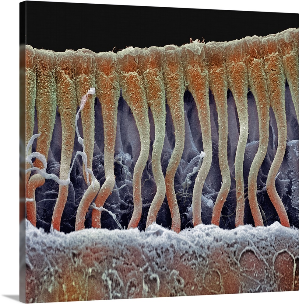 Large Solid-Faced Canvas Print Wall Art Print 20 x 20 entitled Cochlea cells, SEM Solid-Faced Canvas Print entitled Cochlea cells, SEM.  Cochlea cells. Scanning electron micrograph SEM of a vertical section through part of the cochlea inside a human ear. The section shows part of the row of columnar outer pillar cells that runs along the organ of Corti, the auditory sense organ. The outer pillar cells arise from the basilar membrane across bottom, and their upper surfaces across top form part of the surface of the organ of Corti. This organ lies on the basilar membrane, an internal surface of the cochlear duct. The organ of Corti also contains hair cells not seen and an overlying tectorial membrane removed. Sound waves deform hair cell cilia and trigger auditory nerve impulses. Magnification x600 at 6x7cm size.  Multiple sizes available.  Primary colors within this image include Brown, Black, Light Gray.  Made in the USA.  All products come with a 365 day workmanship guarantee.  Archival-quality UV-resistant inks.  Canvas is handcrafted and made-to-order in the United States using high quality artist-grade canvas.  Featuring a proprietary design, our canvases produce the tightest corners without any bubbles, ripples, or bumps and will not warp or sag over time.