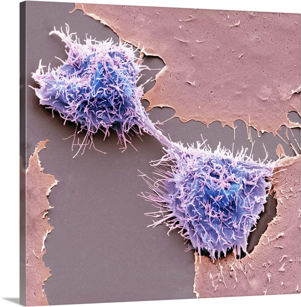 Large Solid-Faced Canvas Print Wall Art Print 20 x 20 entitled Dividing HeLa cells, SEM Solid-Faced Canvas Print entitled Dividing HeLa cells, SEM.  Dividing HeLa cells. Coloured scanning electron micrograph SEM of HeLa cells undergoing cytokinesis cell division. Cytokinesis occurs after nuclear division mitosis, which produces two daughter nuclei. The two daughter cells are still connected by a midbody, a transient structure formed from microtubules. HeLa cells are a continuously cultured cell line of human cancer cells, which are immortal and so thrive in the laboratory. They are widely used in biological and medical research. Magnification x2600 when printed at 10 centimetres wide.  Multiple sizes available.  Primary colors within this image include Dark Gray, Light Gray, White, Muted Blue.  Made in USA.  All products come with a 365 day workmanship guarantee.  Inks used are latex-based and designed to last.  Featuring a proprietary design, our canvases produce the tightest corners without any bubbles, ripples, or bumps and will not warp or sag over time.  Archival inks prevent fading and preserve as much fine detail as possible with no over-saturation or color shifting.