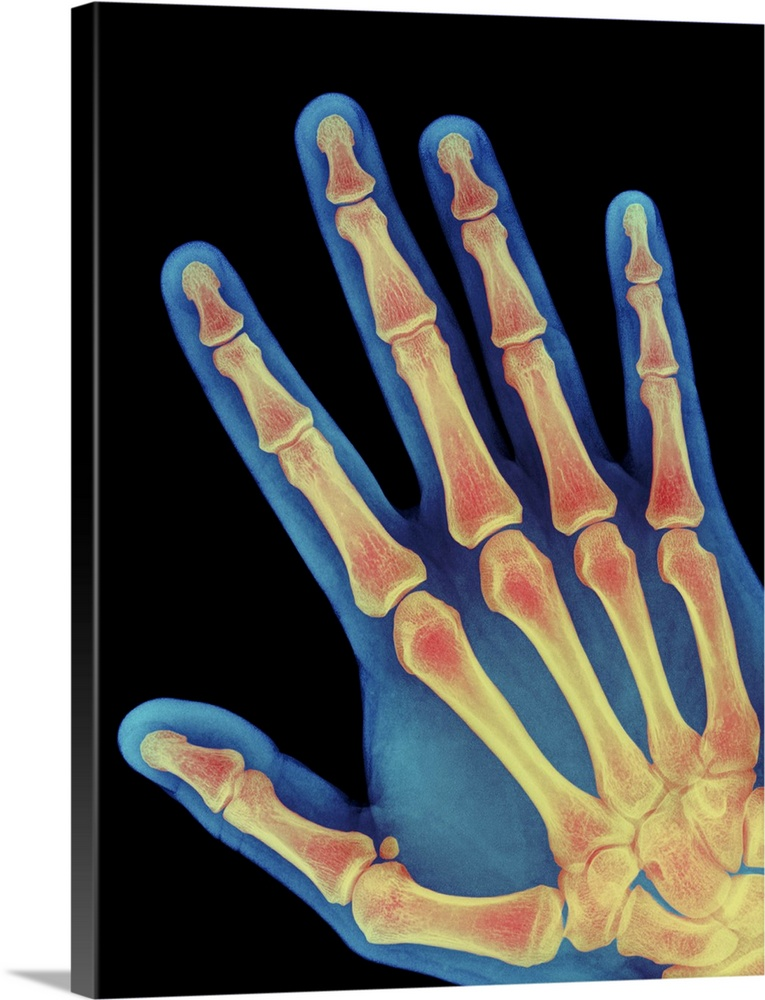 Large Solid-Faced Canvas Print Wall Art Print 30 x 40 entitled Healthy adult hand, X-ray Solid-Faced Canvas Print entitled Healthy adult hand, X-ray.  Healthy hand. Coloured X-ray of the healthy hand of a 60 year old man, showing the skeleton of bones. The fleshy outline of the hand is seen. The arrangement of bones consists of eight small carpals in the wrist at bottom right which articulate with the two long forearm bones. Five metacarpal bones at lower right make up the palm of the hand. Each finger has three phalanges, except the thumb which has two such bones. This skeleton enables the human hand to be used with great flexibility, helped especially by the joint between the wrist and the opposable thumb. This well-adapted hand allowed our ancestors to use and develop tools, facilitating human evolution.  Multiple sizes available.  Primary colors within this image include Pink, Peach, Black, Gray Blue.  Made in USA.  All products come with a 365 day workmanship guarantee.  Archival-quality UV-resistant inks.  Archival inks prevent fading and preserve as much fine detail as possible with no over-saturation or color shifting.  Canvas is handcrafted and made-to-order in the United States using high quality artist-grade canvas.