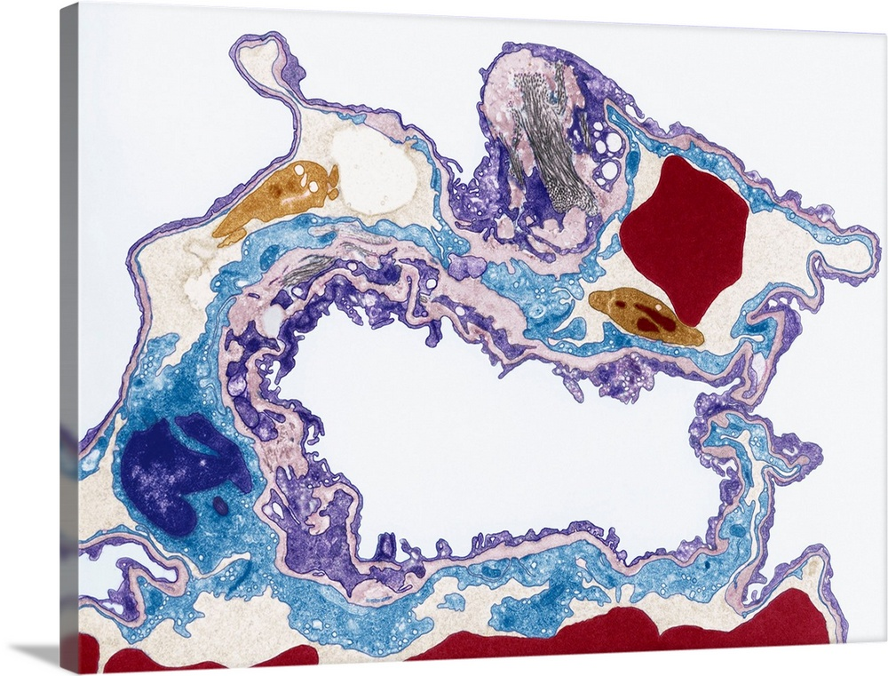 Large Solid-Faced Canvas Print Wall Art Print 40 x 30 entitled Lung tissue, TEM Solid-Faced Canvas Print entitled Lung tissue, TEM.  Lung tissue, coloured transmission electron micrograph TEM. A single alveolus is at center. At top right is a pulmonary capillary containing a red blood cell red and a platelet yellow. Magnification x3500 when printed at 10 centimetres wide.  Multiple sizes available.  Primary colors within this image include Dark Red, Peach, White, Muted Blue.  Made in USA.  All products come with a 365 day workmanship guarantee.  Inks used are latex-based and designed to last.  Canvas depth is 1.25 and includes a finished backing with pre-installed hanging hardware.  Canvas is handcrafted and made-to-order in the United States using high quality artist-grade canvas.