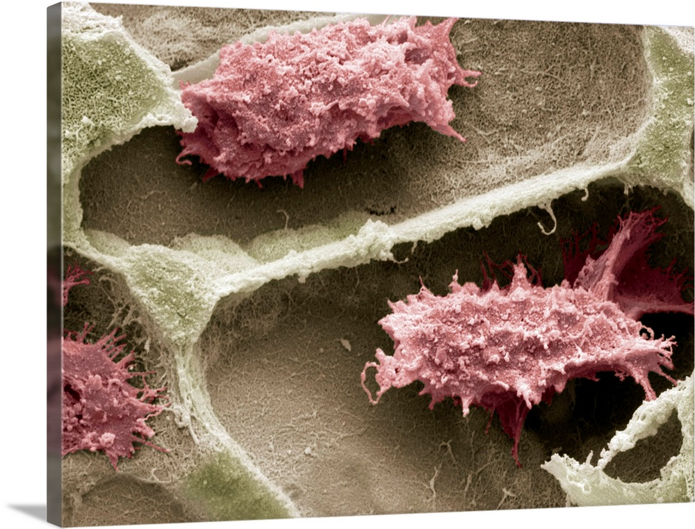Large Solid-Faced Canvas Print Wall Art Print 40 x 30 entitled Osteoclasts in bone lacunae, SEM Solid-Faced Canvas Print entitled Osteoclasts in bone lacunae, SEM.  Osteoclasts in bone lacunae, coloured scanning electron micrograph SEM. These osteoclasts are seen in Howslips lacunae, spaces in the bone where they are responsible for remodeling the bone surface. Osteoclasts remodel bone by degrading and reabsorbing it in response to growth or changing mechanical stress. Magnification x2700 when printed at 10 centimetres wide.  Multiple sizes available.  Primary colors within this image include Black, Gray, Silver.  Made in USA.  All products come with a 365 day workmanship guarantee.  Archival-quality UV-resistant inks.  Featuring a proprietary design, our canvases produce the tightest corners without any bubbles, ripples, or bumps and will not warp or sag over time.  Archival inks prevent fading and preserve as much fine detail as possible with no over-saturation or color shifting.