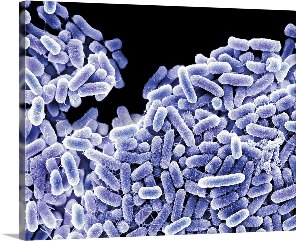 Large Solid-Faced Canvas Print Wall Art Print 30 x 24 entitled Salmonella bacteria, SEM Solid-Faced Canvas Print entitled Salmonella bacteria, SEM.  Salmonella bacteria, coloured scanning electron micrograph SEM. These Gram-negative rod-shaped bacteria can cause food poisoning when eaten in contaminated food. Symptoms may include abdominal pain, nausea, diarrhoea and vomiting.  Multiple sizes available.  Primary colors within this image include Black, White, Muted Blue.  Made in USA.  Satisfaction guaranteed.  Inks used are latex-based and designed to last.  Canvas is handcrafted and made-to-order in the United States using high quality artist-grade canvas.  Canvas depth is 1.25 and includes a finished backing with pre-installed hanging hardware.