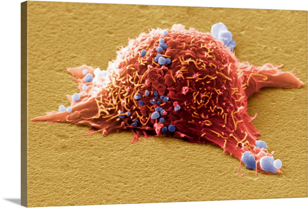 Large Solid-Faced Canvas Print Wall Art Print 30 x 20 entitled Skin cancer cell, SEM Solid-Faced Canvas Print entitled Skin cancer cell, SEM.  Skin cancer cell, coloured scanning electron micrograph SEM. Cultured melanoma cell showing the numerous blebs blue and microvilli orange characteristic of cancer cells. Skin cancer arises from the skins melanocytes, the cells that produce the pigment melanin which gives skin its colour. Melanoma is an aggressive cancer that often spreads metastasises to other tissues of the body. The long cell processes seen here are thought to help the cell to move. The main cause of melanoma is exposure to ultraviolet radiation in sunlight. Magnification x5250 when printed at 10 centimetres wide.  Multiple sizes available.  Primary colors within this image include Dark Red, Peach, Black, Silver.  Made in USA.  Satisfaction guaranteed.  Inks used are latex-based and designed to last.  Archival inks prevent fading and preserve as much fine detail as possible with no over-saturation or color shifting.  Featuring a proprietary design, our canvases produce the tightest corners without any bubbles, ripples, or bumps and will not warp or sag over time.