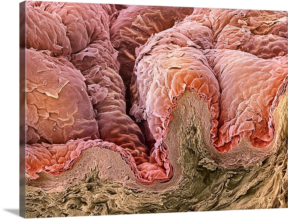 Large Solid-Faced Canvas Print Wall Art Print 40 x 30 entitled Skin, SEM Solid-Faced Canvas Print entitled Skin, SEM.  Skin. Coloured scanning electron micrograph SEM of a section through healthy skin from the breast. The top layer is the stratum corneum red, which is composed of dead, keratinised flattened cells that are continuously sloughed off and replaced with new cells from below. The dermis pink contains the blood vessels that nourish the upper layer. Below the dermis is the subcutaneous layer brown which is mostly composed of fat.  Multiple sizes available.  Primary colors within this image include Brown, Peach, Black.  Made in USA.  Satisfaction guaranteed.  Inks used are latex-based and designed to last.  Canvas is handcrafted and made-to-order in the United States using high quality artist-grade canvas.  Archival inks prevent fading and preserve as much fine detail as possible with no over-saturation or color shifting.
