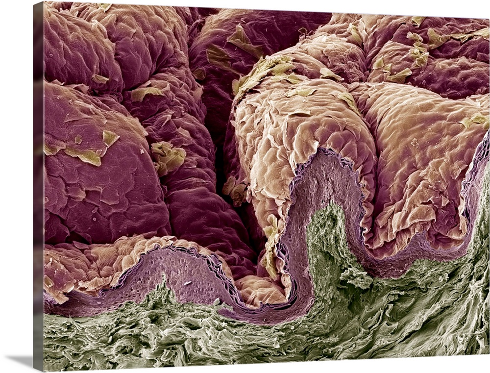 Large Solid-Faced Canvas Print Wall Art Print 40 x 30 entitled Skin tissue, SEM Solid-Faced Canvas Print entitled Skin tissue, SEM.  Skin tissue. Coloured scanning electron micrograph SEM of a freeze-fracture through human skin tissue. The fracture plane lower frame has revealed the pseudo-stratified epithelium below surface and the underlying dermis connective tissue, green. The folded surface of the skin upper frame is covered by mature keratinocytes. Magnification x165 when printed at 10 centimetres across.  Multiple sizes available.  Primary colors within this image include Black, Gray, Silver, Dark Forest Green.  Made in USA.  All products come with a 365 day workmanship guarantee.  Archival-quality UV-resistant inks.  Canvas depth is 1.25 and includes a finished backing with pre-installed hanging hardware.  Archival inks prevent fading and preserve as much fine detail as possible with no over-saturation or color shifting.