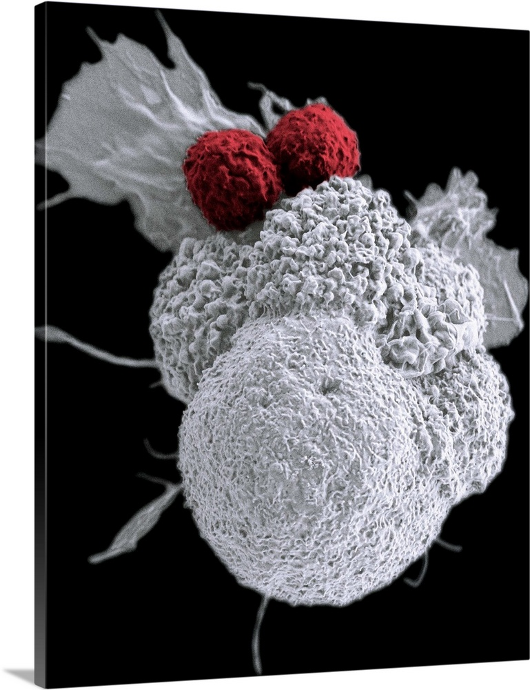 Large Solid-Faced Canvas Print Wall Art Print 24 x 30 entitled T cells attacking cancer cell, SEM Solid-Faced Canvas Print entitled T cells attacking cancer cell, SEM.  T cells attacking cancer cell, coloured scanning electron micrograph SEM. The T cells red are attacking an oral squamous cancer cell white. The cytotoxic cell-killing T cells are part of a natural immune response. Research being carried out in the field of nanomedicine is creating personalized cancer vaccines by loading neoantigens from a patients tumour into nanoparticles. These nanoparticles are then used to activate the patients own immune system, triggering the actions of T cells as seen here.  Multiple sizes available.  Primary colors within this image include Dark Red, Black, Light Gray, White.  Made in the USA.  Satisfaction guaranteed.  Archival-quality UV-resistant inks.  Canvas depth is 1.25 and includes a finished backing with pre-installed hanging hardware.  Archival inks prevent fading and preserve as much fine detail as possible with no over-saturation or color shifting.