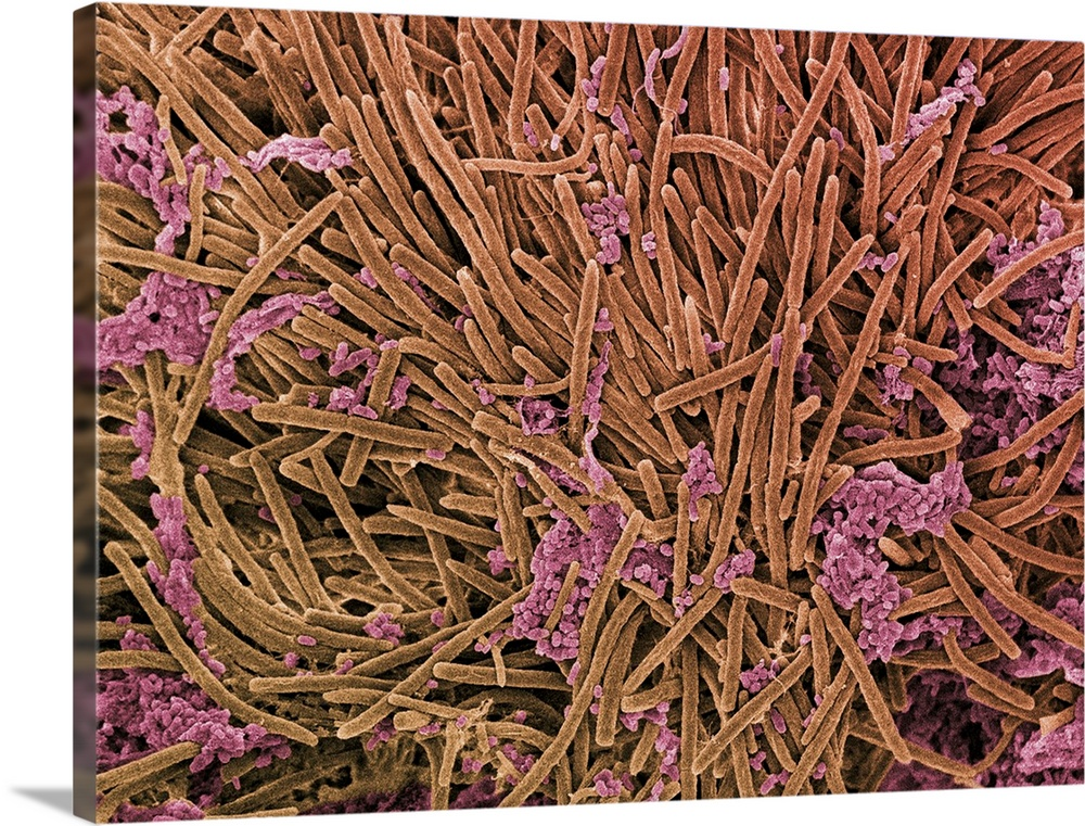 Large Solid-Faced Canvas Print Wall Art Print 40 x 30 entitled Tongue bacteria, SEM Solid-Faced Canvas Print entitled Tongue bacteria, SEM.  Tongue bacteria. Coloured scanning electron micrograph SEM of bacteria on the surface of a human tongue. Large numbers of bacteria can form a visible layer on the surface of the tongue. The mouth contains a large number of bacteria, most of which are harmless or even beneficial. However, some bacteria can cause throat infections or cause the formation of plaque deposits on the teeth, which may lead to decay. Magnification x4000 at 10cm wide.  Multiple sizes available.  Primary colors within this image include Brown, Black, Silver.  Made in the USA.  Satisfaction guaranteed.  Inks used are latex-based and designed to last.  Featuring a proprietary design, our canvases produce the tightest corners without any bubbles, ripples, or bumps and will not warp or sag over time.  Canvas is handcrafted and made-to-order in the United States using high quality artist-grade canvas.