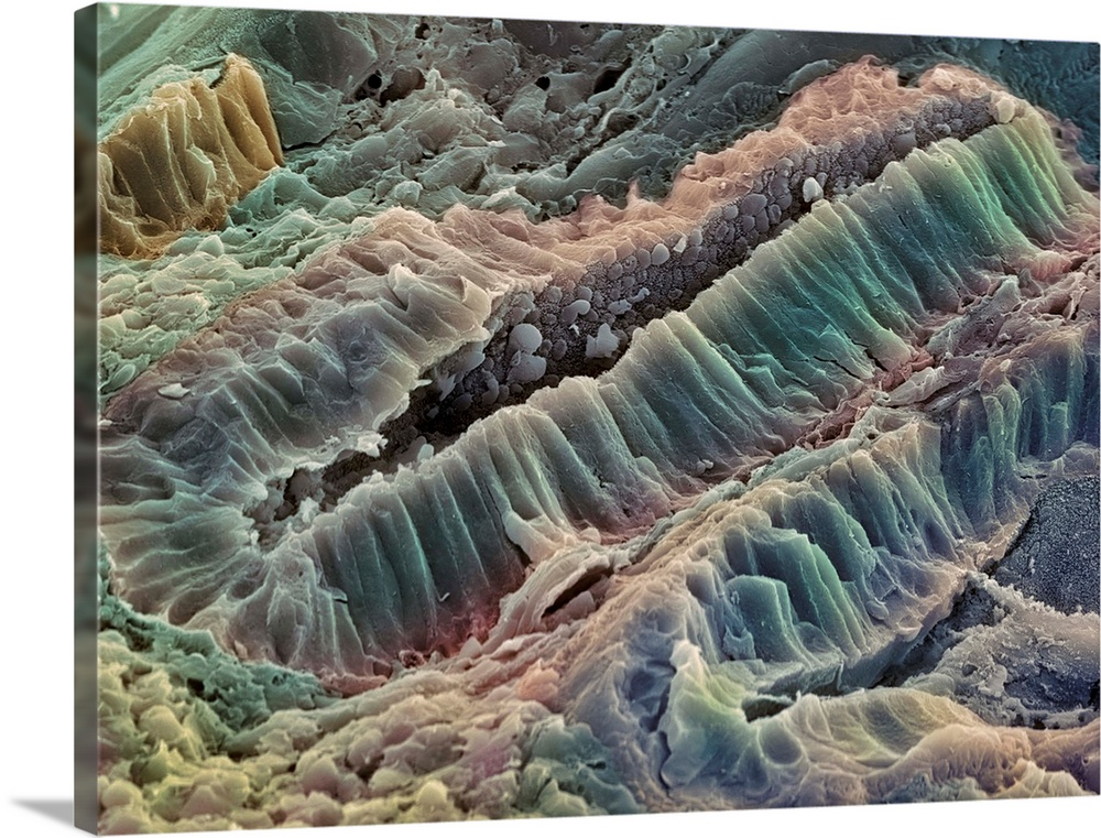 Large Solid-Faced Canvas Print Wall Art Print 40 x 30 entitled Ulcerative colitis, SEM Solid-Faced Canvas Print entitled Ulcerative colitis, SEM.  Ulcerative colitis. Coloured scanning electron micrograph SEM of freeze-fractured bowel tissue from a patient suffering from ulcerative colitis. The fracture plane has passed through the walls of a tubular gland, leaving the space lumen between the walls lower left to top right surrounded by a section through these walls. This section shows that the wall comprises columnar absorptive cells that absorb nutrients through the microvilli on their surface. This surface is partly visible in the lumen. The absence of mucus-secreting goblet cells is a characteristic of ulcerative colitis, which is the inflammation and ulceration of the colon and rectum. Magnification unknown.  Multiple sizes available.  Primary colors within this image include Black, Gray, Silver.  Made in the USA.  Satisfaction guaranteed.  Archival-quality UV-resistant inks.  Canvas is handcrafted and made-to-order in the United States using high quality artist-grade canvas.  Featuring a proprietary design, our canvases produce the tightest corners without any bubbles, ripples, or bumps and will not warp or sag over time.