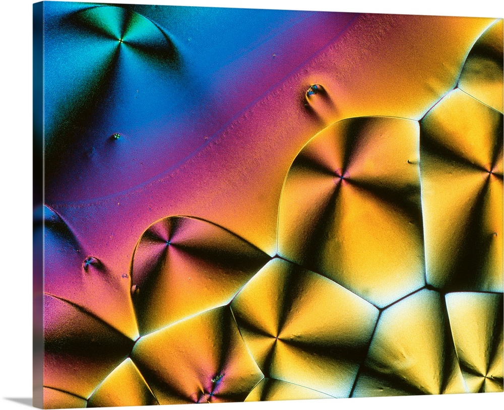 Large Solid-Faced Canvas Print Wall Art Print 30 x 24 entitled Vitamin C crystals Solid-Faced Canvas Print entitled Vitamin C crystals.  Vitamin C. Polarised light micrograph of crystals of ascorbic acid, the common vitamin C. It is a water soluble vitamin and plays an essential role in the activity of many enzymes in the human body. It is important for the growth and maintenance of healthy bones, gums, teeth, ligaments and blood vessels. It is involved in the production of neurotransmitters and in the stimulation of the immune system against infections. The main dietary sources of vitamin C are citrus fruits and green vegetables. The recommended daily intake for an adult is 30mg. Severe deficiency of vitamin C leads to scurvy. Magnification x35 at 6x7cm size.  Multiple sizes available.  Primary colors within this image include Pink, Light Yellow, Black, Royal Blue.  Made in the USA.  Satisfaction guaranteed.  Inks used are latex-based and designed to last.  Archival inks prevent fading and preserve as much fine detail as possible with no over-saturation or color shifting.  Canvas depth is 1.25 and includes a finished backing with pre-installed hanging hardware.